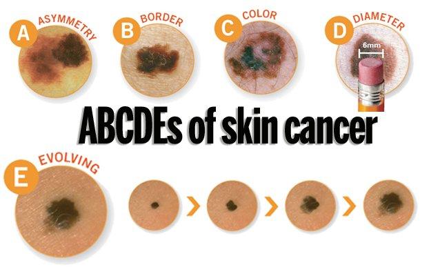 skin_cancer_t640